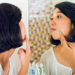 Natural Na Mga Paraan Kung Paano Mawala Ang Pimples