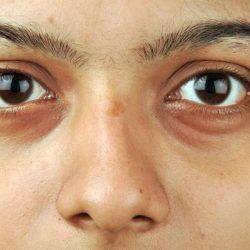 Paano Mawala Ang Eyebags: Simpleng Mga Paraan Para Sa Eyebags