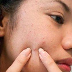 Gamot Sa Pimples: Ano Ba Ang Mabisang Gamot Sa Tigyawat